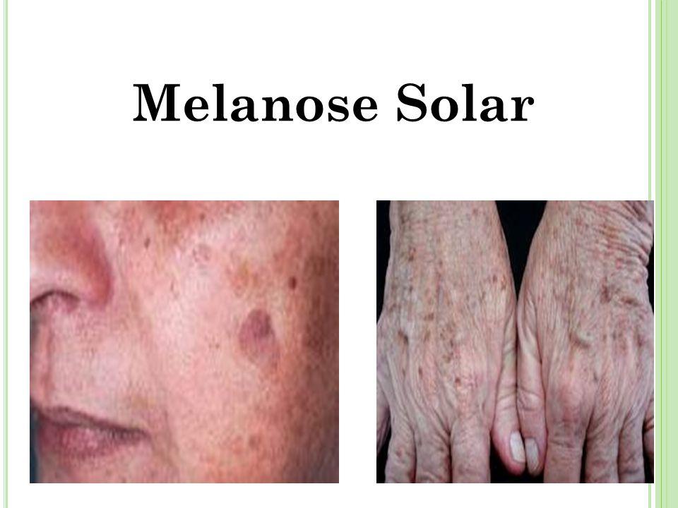 Melanose Solar