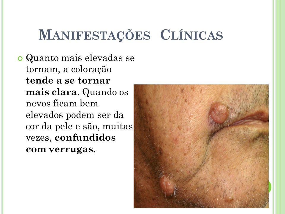 Crescimento anormal e descontrolado das células da pele; Qualquer célula que compõe a pele pode originar um câncer; Existem diversos tipos de câncer de pele; O câncer de pele é o câncer mais comum do ser humano, responsável por 1/3 de todos os casos de câncer do mundo;