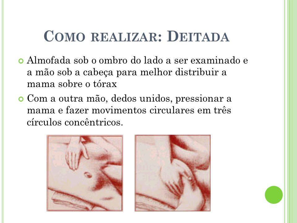 C OMO REALIZAR : D EITADA Almofada sob o ombro do lado a ser examinado e a mão sob a cabeça para melhor distribuir a mama sobre o tórax Com a outra mã