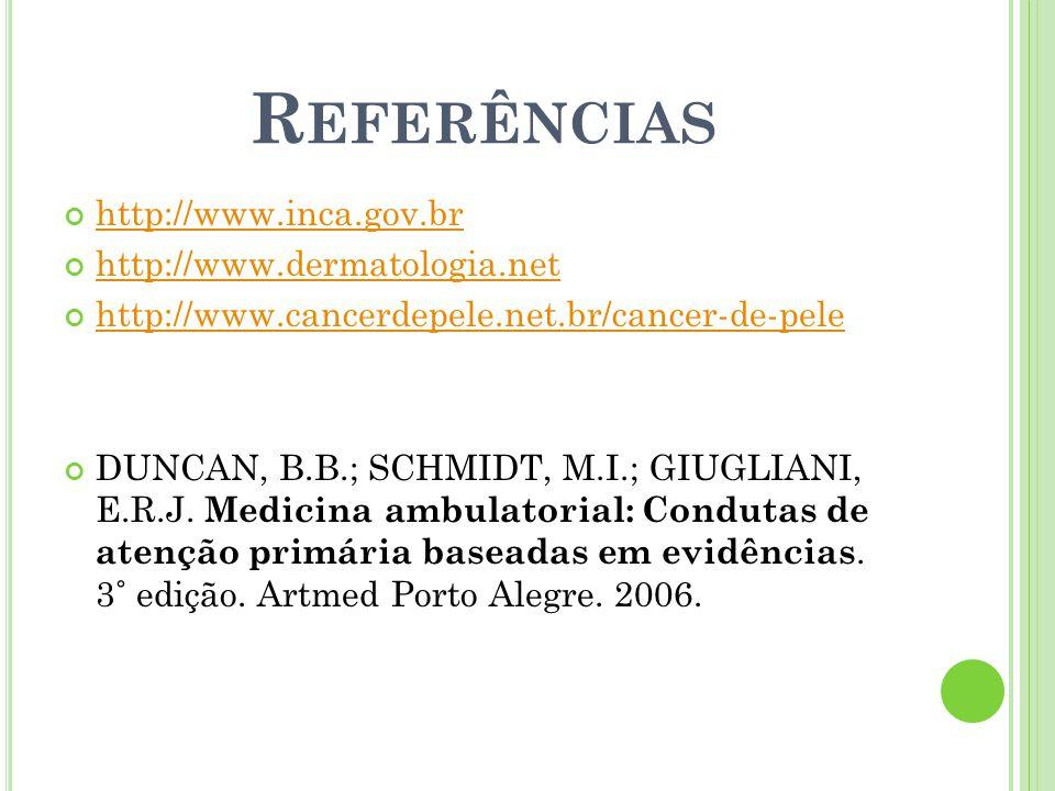 R EFERÊNCIAS http://www.inca.gov.br http://www.dermatologia.net http://www.cancerdepele.net.br/cancer-de-pele DUNCAN, B.B.; SCHMIDT, M.I.; GIUGLIANI,