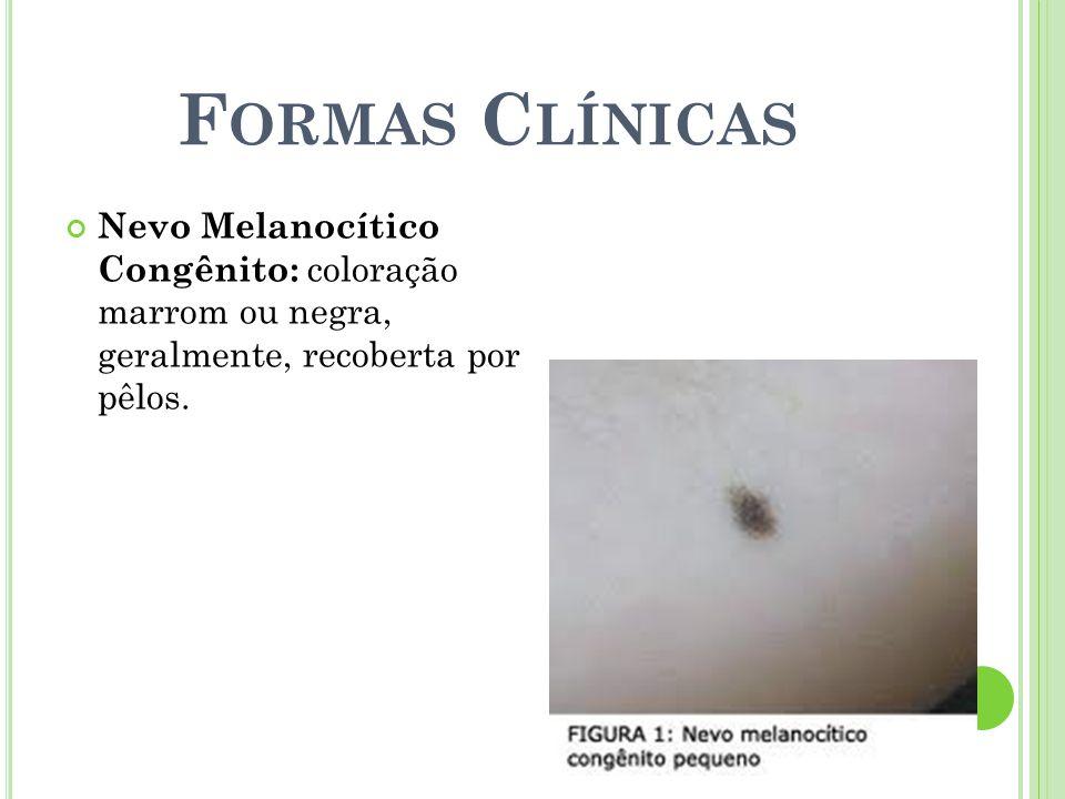 F ORMAS C LÍNICAS Nevo Melanocítico Congênito: coloração marrom ou negra, geralmente, recoberta por pêlos.