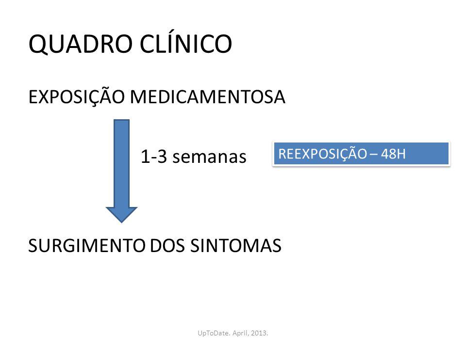 QUADRO CLÍNICO EXPOSIÇÃO MEDICAMENTOSA 1-3 semanas SURGIMENTO DOS SINTOMAS REEXPOSIÇÃO – 48H UpToDate. April, 2013.