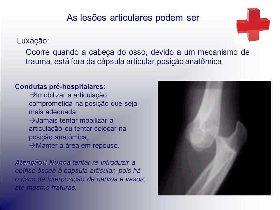 As lesões articulares podem ser Luxação: Ocorre quando a cabeça do osso, devido a um mecanismo de trauma, está fora da cápsula articular,posição anatômica.