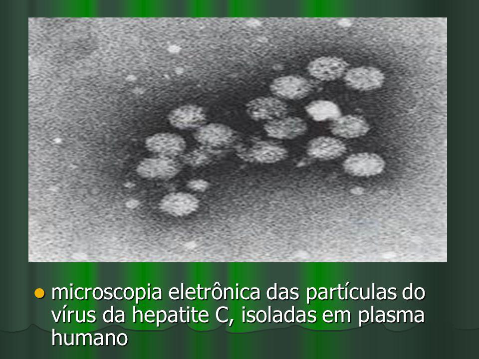 microscopia eletrônica das partículas do vírus da hepatite C, isoladas em plasma humano microscopia eletrônica das partículas do vírus da hepatite C,