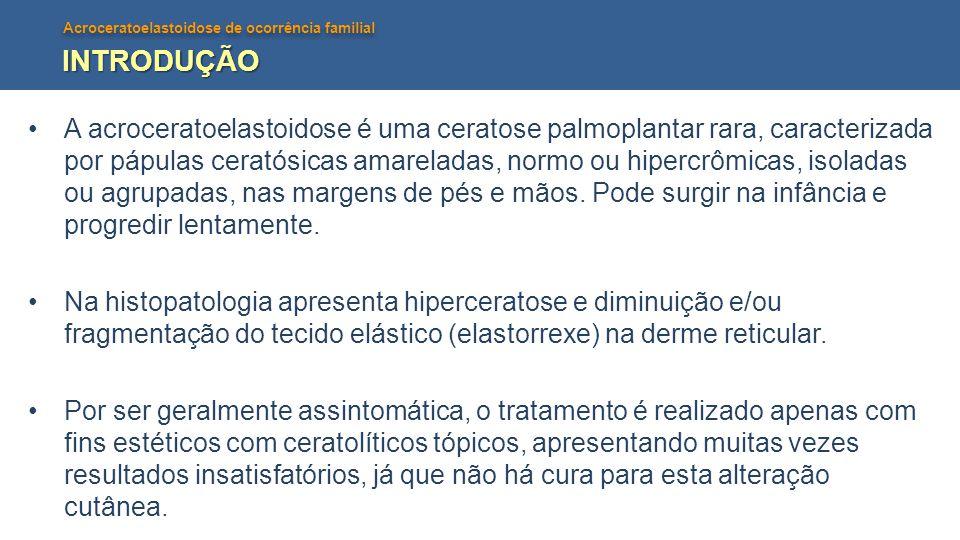 Acroceratoelastoidose de ocorrência familial INTRODUÇÃO A acroceratoelastoidose é uma ceratose palmoplantar rara, caracterizada por pápulas ceratósica