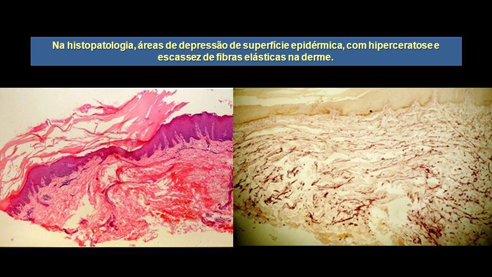 Na histopatologia, áreas de depressão de superfície epidérmica, com hiperceratose e escassez de fibras elásticas na derme.