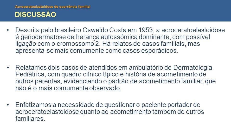 Acroceratoelastoidose de ocorrência familial DISCUSSÃO Descrita pelo brasileiro Oswaldo Costa em 1953, a acroceratoelastoidose é genodermatose de hera