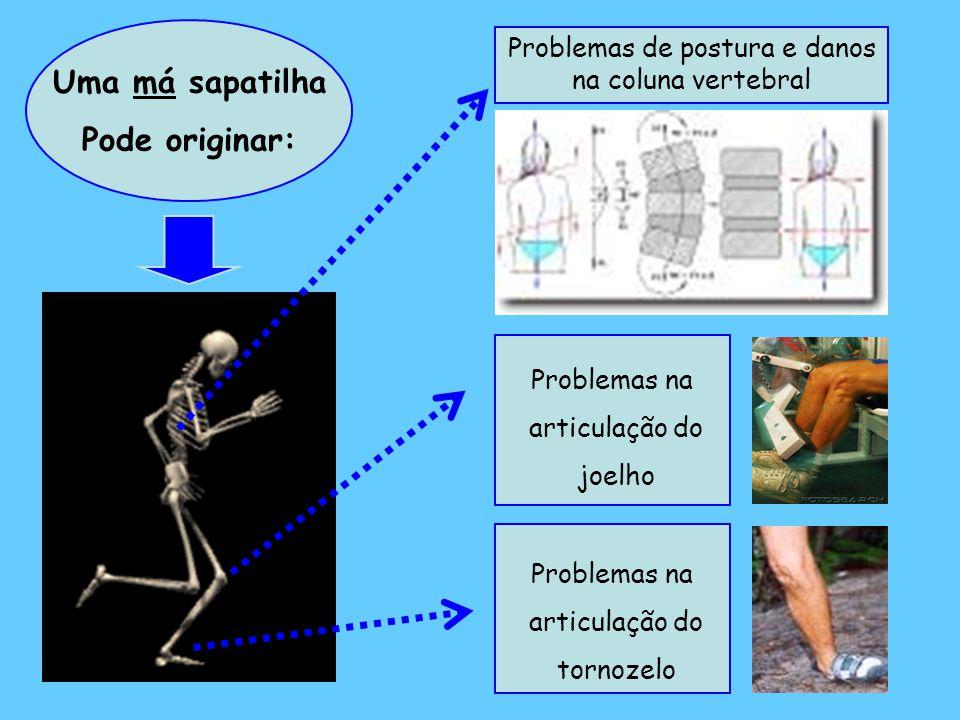 Uma má sapatilha Pode originar: Problemas na articulação do tornozelo Problemas na articulação do joelho Problemas de postura e danos na coluna vertebral