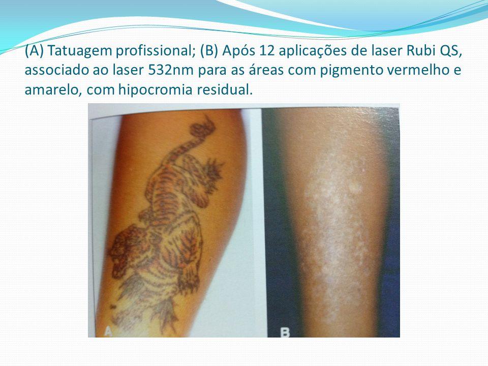 (A) Tatuagem profissional; (B) Após 12 aplicações de laser Rubi QS, associado ao laser 532nm para as áreas com pigmento vermelho e amarelo, com hipocr