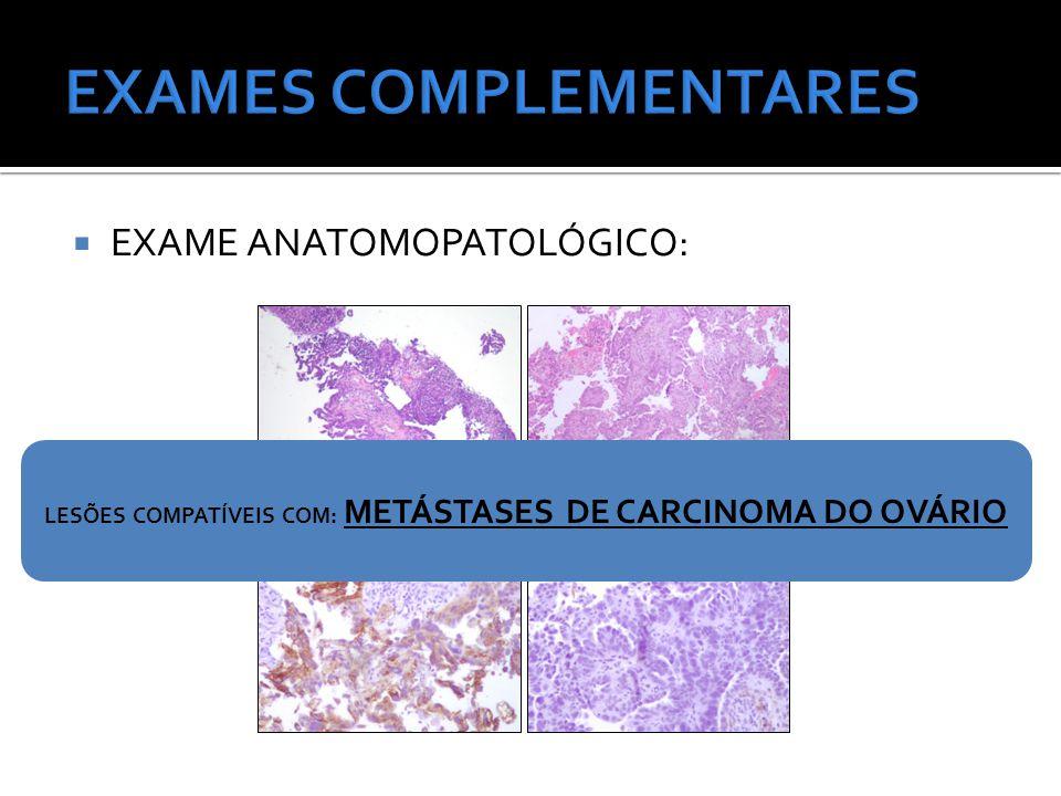  EXAME ANATOMOPATOLÓGICO: LESÕES COMPATÍVEIS COM: METÁSTASES DE CARCINOMA DO OVÁRIO