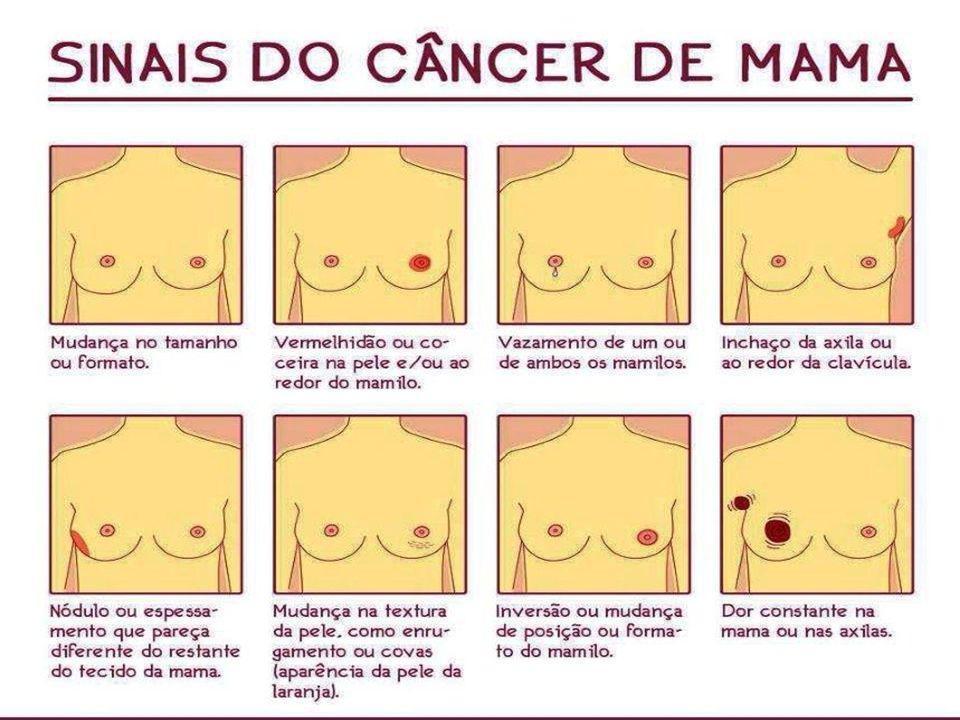 DIAGNÓSTICO PRECOCE Através do autoexame das mamas; Através do exame das mamas feito em uma consulta ginecológica; Através da mamografia.
