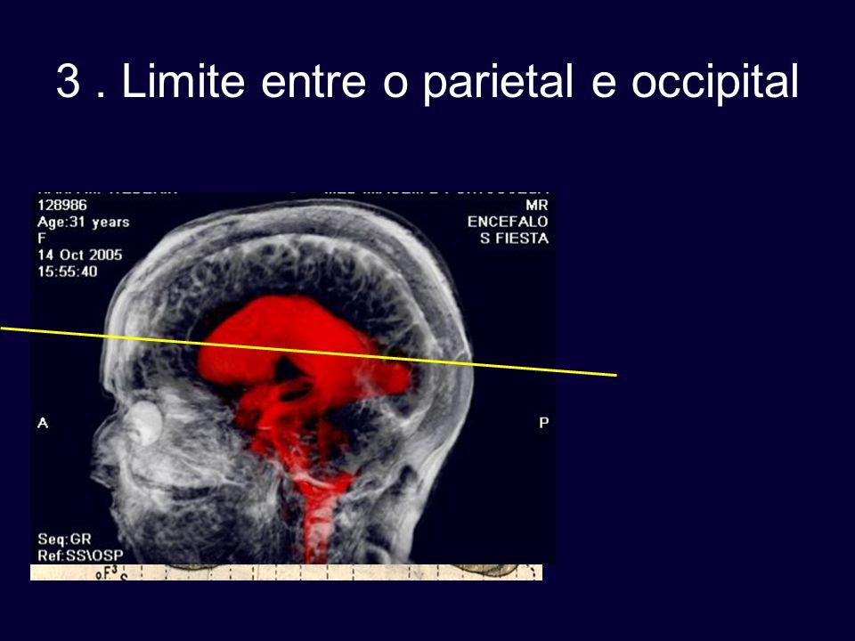 3. Limite entre o parietal e occipital