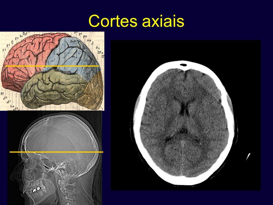 Anatomia tomografica dos lobos em 4 dicas.1. Limite entre o lobo frontal e parietal 2.