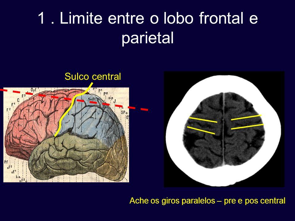 1. Limite entre o lobo frontal e parietal Sulco central Ache os giros paralelos – pre e pos central