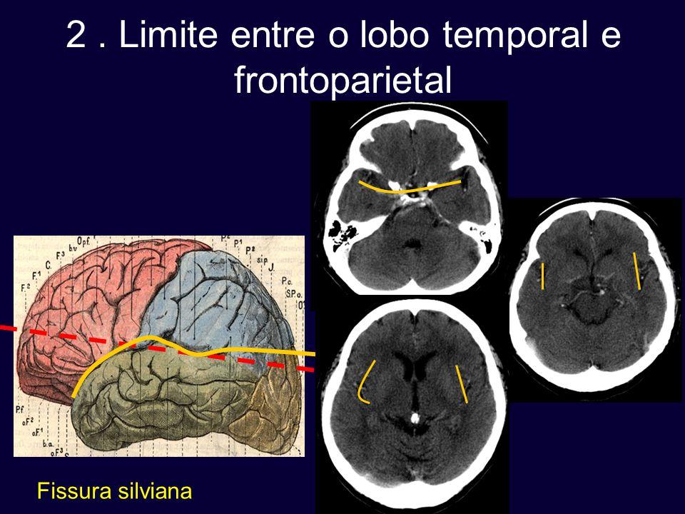 2. Limite entre o lobo temporal e frontoparietal Fissura silviana