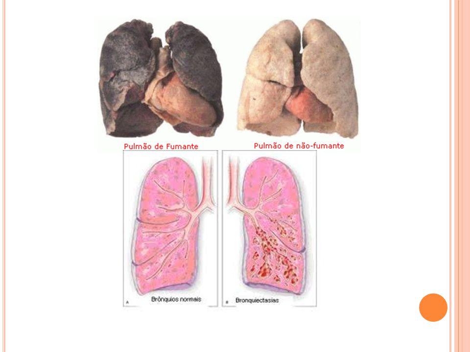 V ERIFICA SE S ABES 1- Qual a constituição do sistema respiratório.