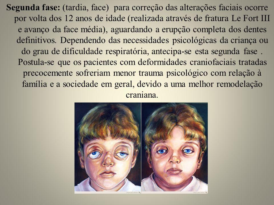 Segunda fase: (tardia, face) para correção das alterações faciais ocorre por volta dos 12 anos de idade (realizada através de fratura Le Fort III e av