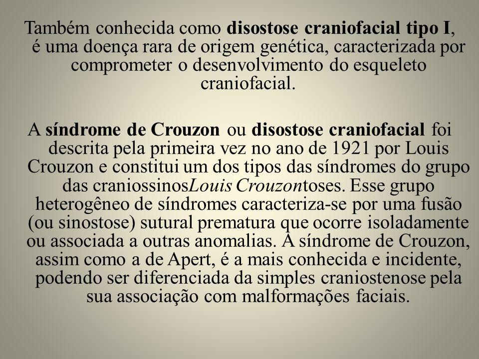 Diagnóstico O diagnóstico da síndrome de Crouzon pode ser feito através do exame citologia genética durante a gravidez, ao nascer ou durante o primeiro ano de vida, mas geralmente só é detectada aos 2 anos de idade quando as deformidades mostram-se mais pronunciadas.