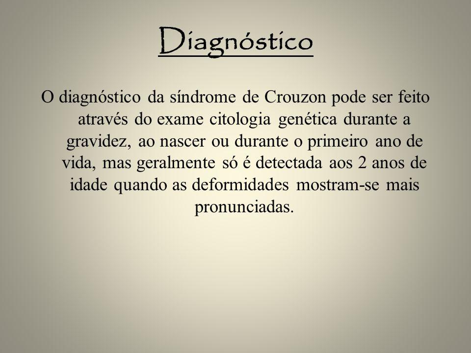 Diagnóstico O diagnóstico da síndrome de Crouzon pode ser feito através do exame citologia genética durante a gravidez, ao nascer ou durante o primeir