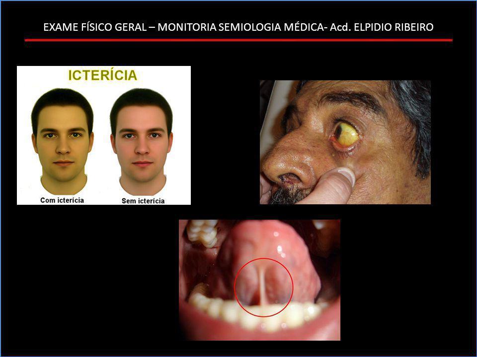 EXAME FÍSICO GERAL – MONITORIA SEMIOLOGIA MÉDICA- Acd. ELPIDIO RIBEIRO