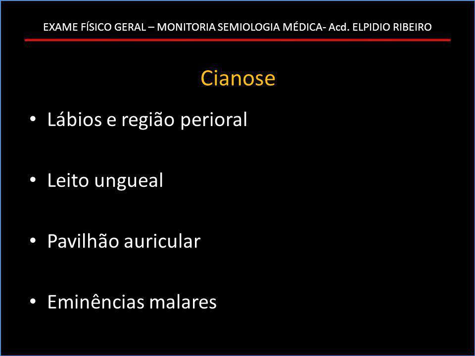 EXAME FÍSICO GERAL – MONITORIA SEMIOLOGIA MÉDICA- Acd. ELPIDIO RIBEIRO Cianose • Lábios e região perioral • Leito ungueal • Pavilhão auricular • Eminê