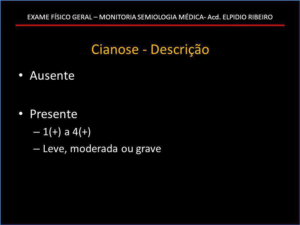 Cianose - Descrição • Ausente • Presente – 1(+) a 4(+) – Leve, moderada ou grave