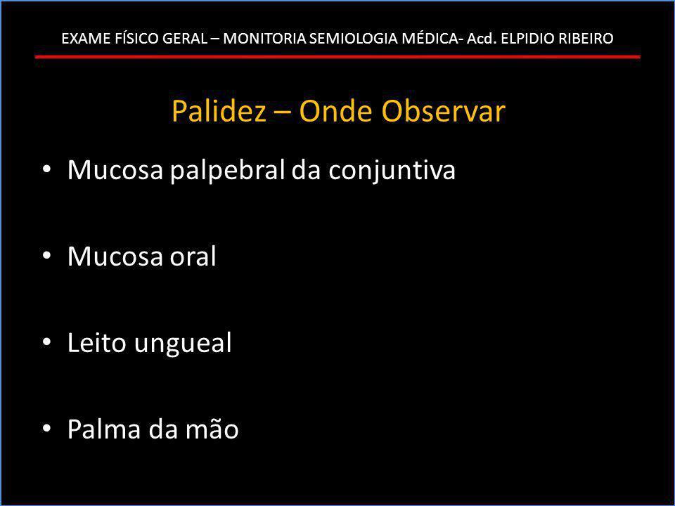EXAME FÍSICO GERAL – MONITORIA SEMIOLOGIA MÉDICA- Acd. ELPIDIO RIBEIRO Palidez – Onde Observar • Mucosa palpebral da conjuntiva • Mucosa oral • Leito