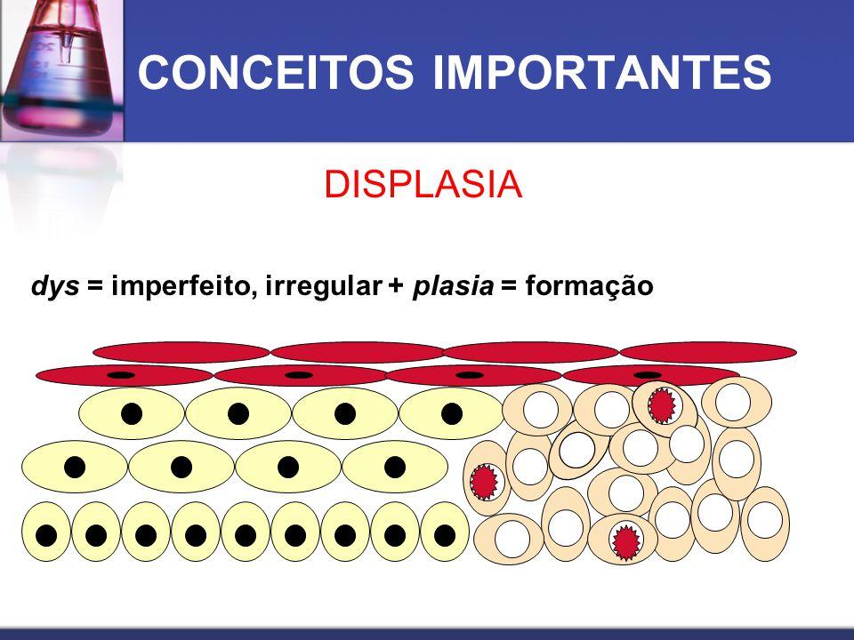 CONCEITOS IMPORTANTES DISPLASIA dys = imperfeito, irregular + plasia = formação