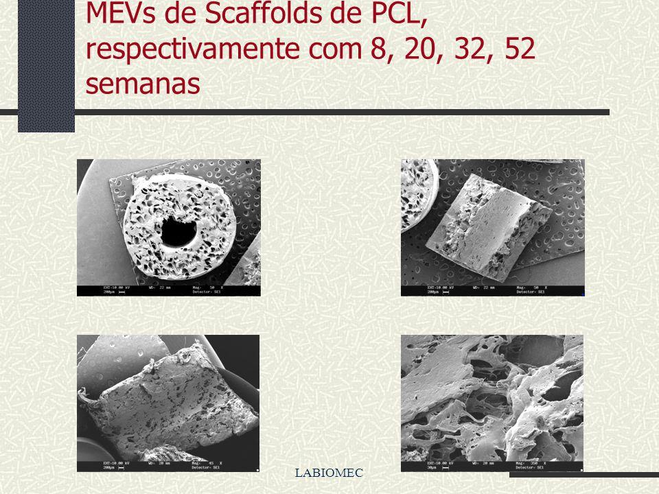 LABIOMEC MEVs de Scaffolds de PLGA, respectivamente com 8, 20, 32, 52 semanas