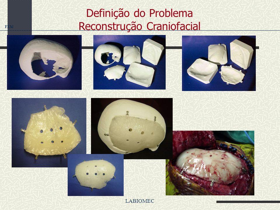 LABIOMEC Prototipagem rápida auxiliando o preenchimento de defeitos crânio- faciais