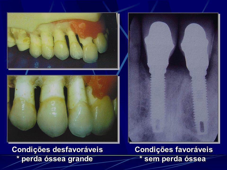 Condições desfavoráveis * perda óssea grande Condições favoráveis * sem perda óssea