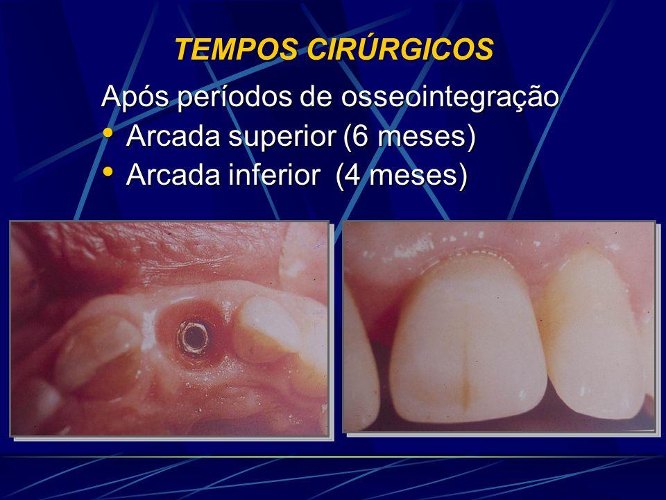 TEMPOS CIRÚRGICOS Após períodos de osseointegração • Arcada superior (6 meses) • Arcada inferior (4 meses)