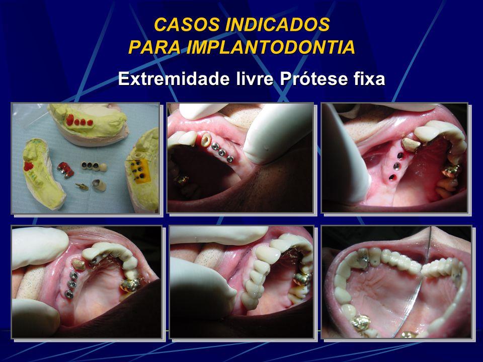 CASOS INDICADOS PARA IMPLANTODONTIA Extremidade livre Prótese fixa