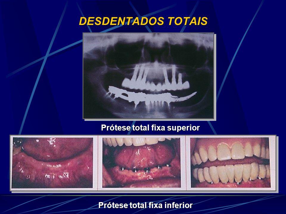 DESDENTADOS TOTAIS Prótese total fixa superior Prótese total fixa inferior