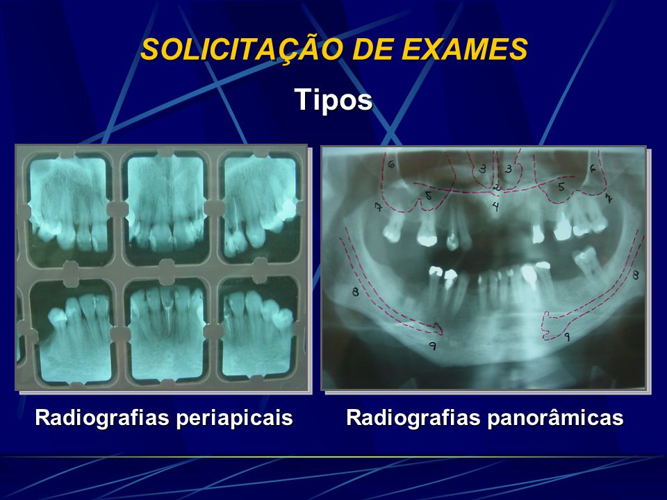SOLICITAÇÃO DE EXAMES TOMOGRAFIA Computadorizada Convencional