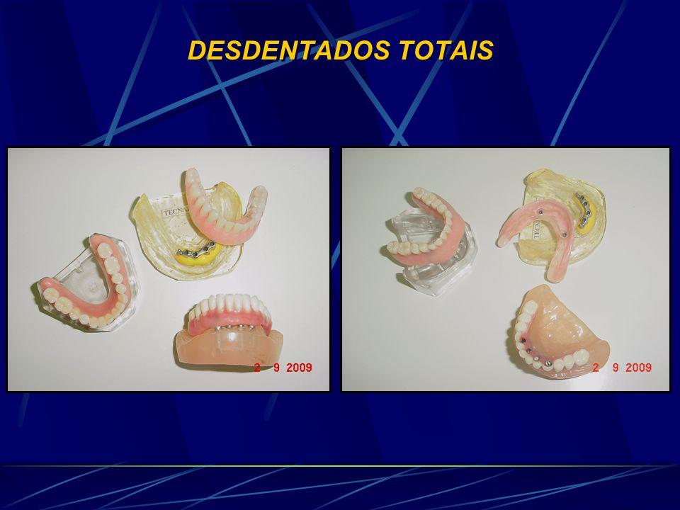 DESDENTADOS TOTAIS