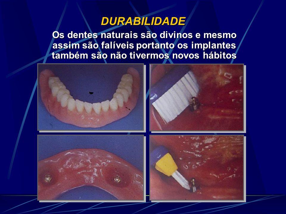 DURABILIDADE Os dentes naturais são divinos e mesmo assim são falíveis portanto os implantes também são não tivermos novos hábitos
