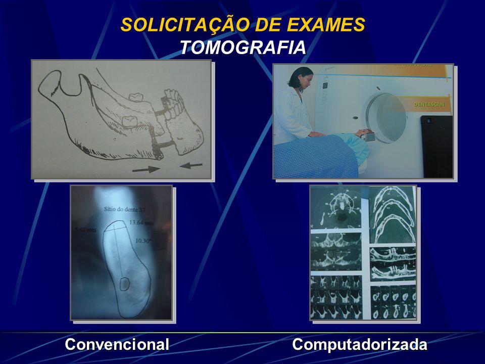 CASOS INDICADOS PARA IMPLANTODONTIA Extremidade livre Prótese removível c/encaixe