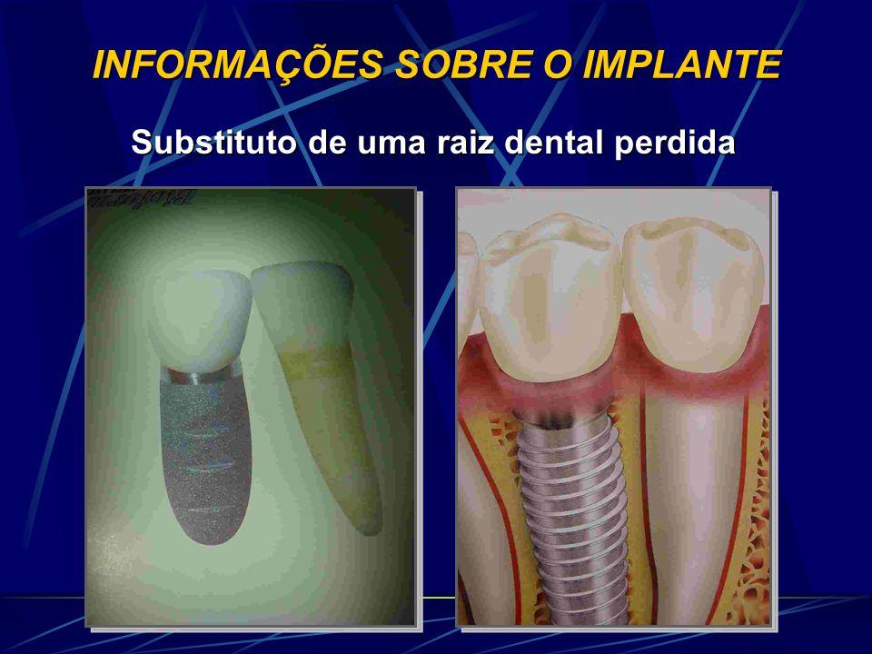 INFORMAÇÕES SOBRE O IMPLANTE Substituto de uma raiz dental perdida Substituto de uma raiz dental perdida