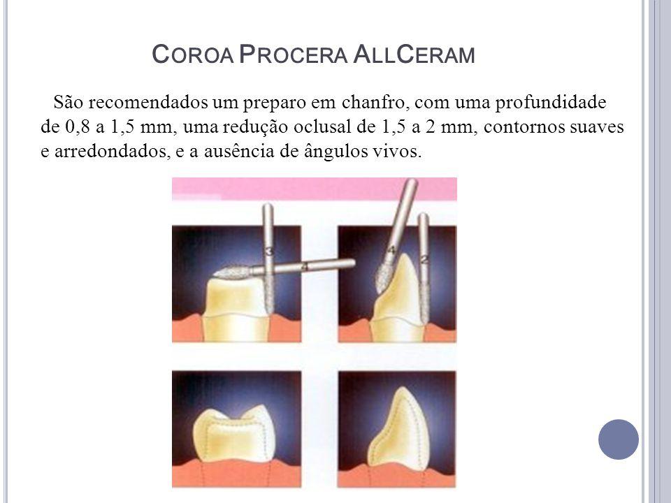C OROA P ROCERA A LL C ERAM São recomendados um preparo em chanfro, com uma profundidade de 0,8 a 1,5 mm, uma redução oclusal de 1,5 a 2 mm, contornos