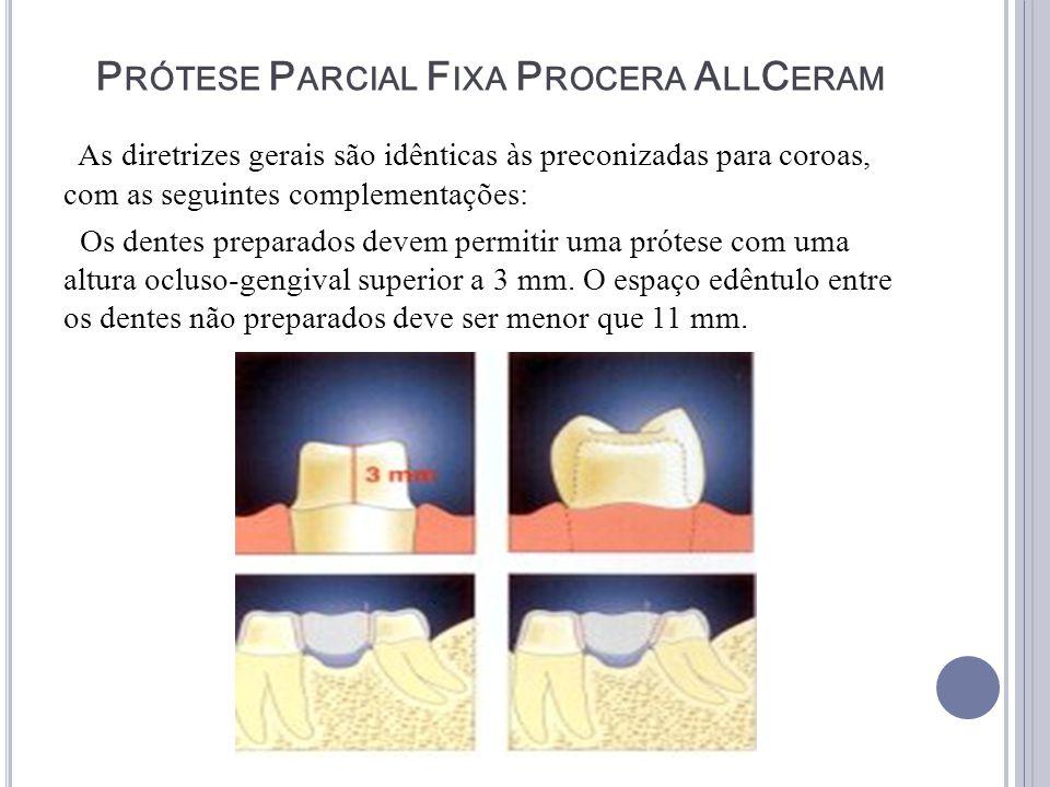 P RÓTESE P ARCIAL F IXA P ROCERA A LL C ERAM As diretrizes gerais são idênticas às preconizadas para coroas, com as seguintes complementações: Os dent