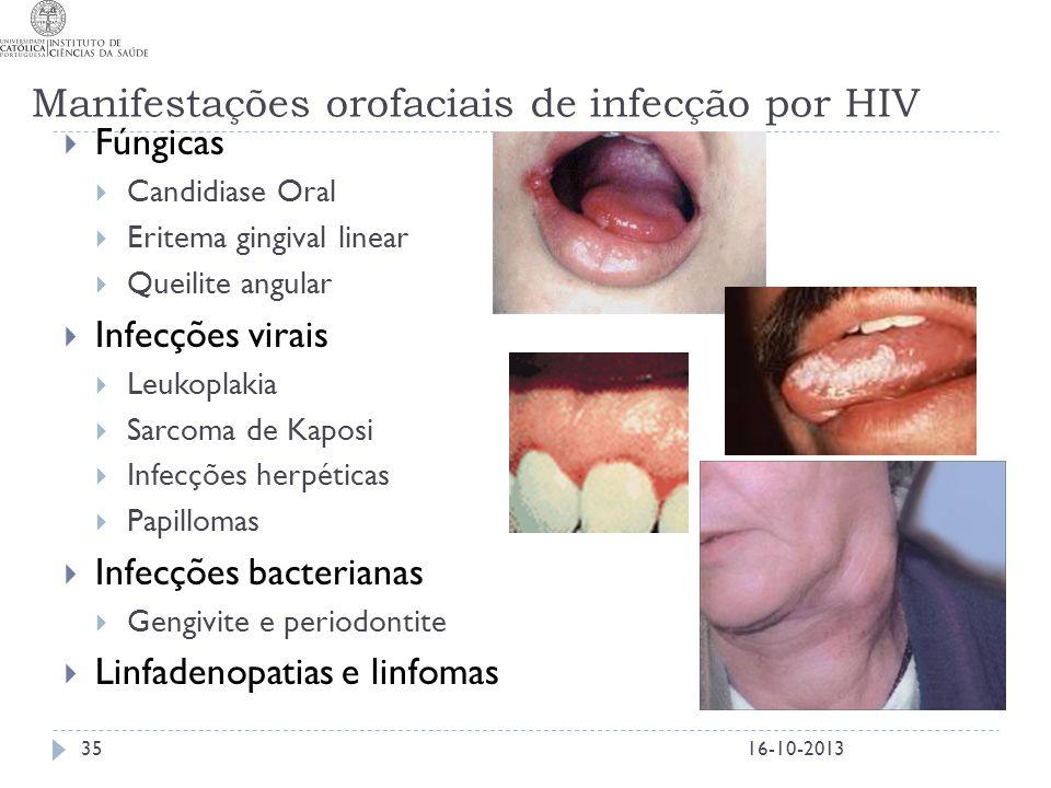 Manifestações orofaciais de infecção por HIV  Fúngicas  Candidiase Oral  Eritema gingival linear  Queilite angular  Infecções virais  Leukoplaki
