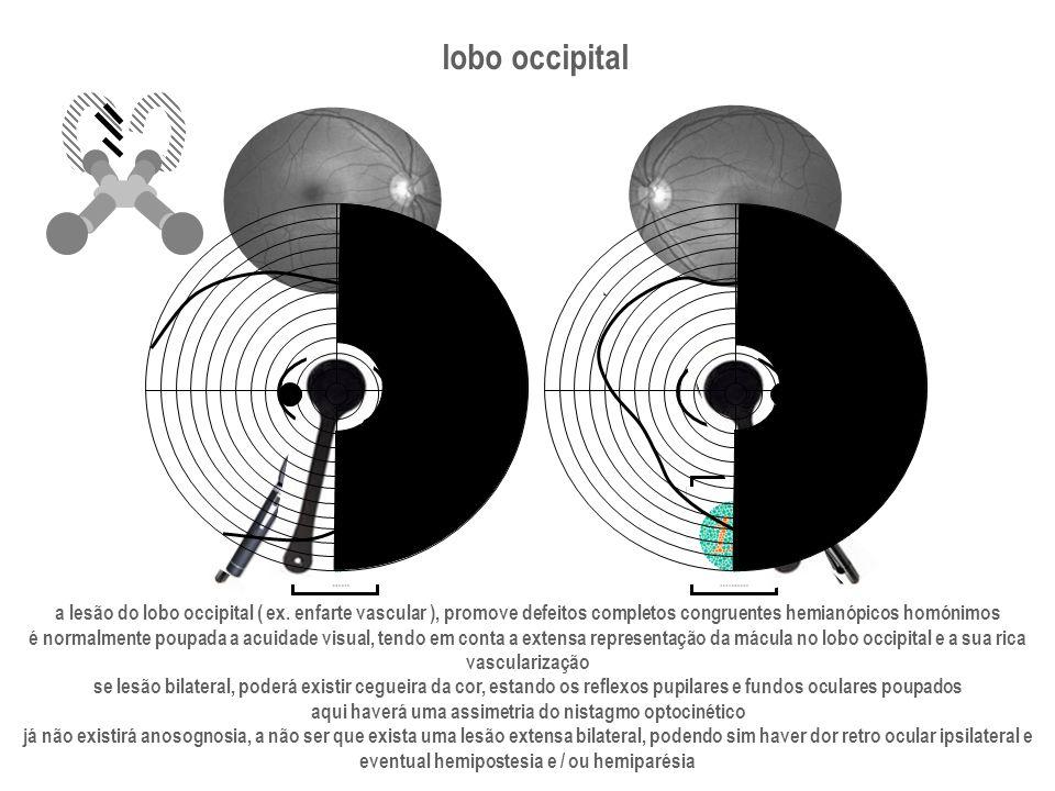 lobo occipital a lesão do lobo occipital ( ex. enfarte vascular ), promove defeitos completos congruentes hemianópicos homónimos é normalmente poupada