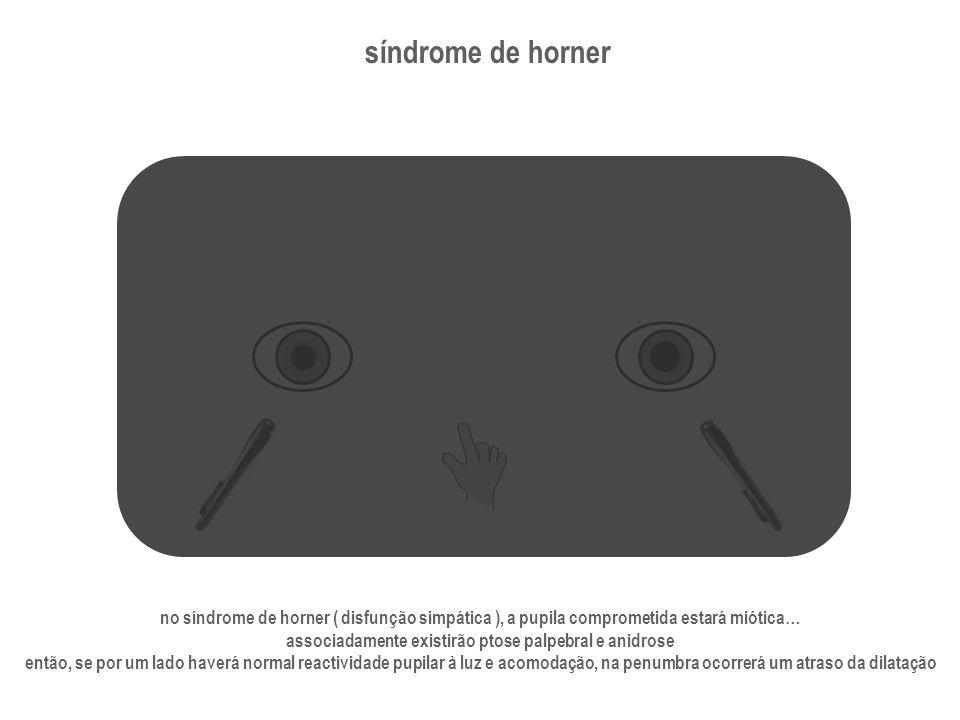 síndrome de horner no síndrome de horner ( disfunção simpática ), a pupila comprometida estará miótica… associadamente existirão ptose palpebral e ani