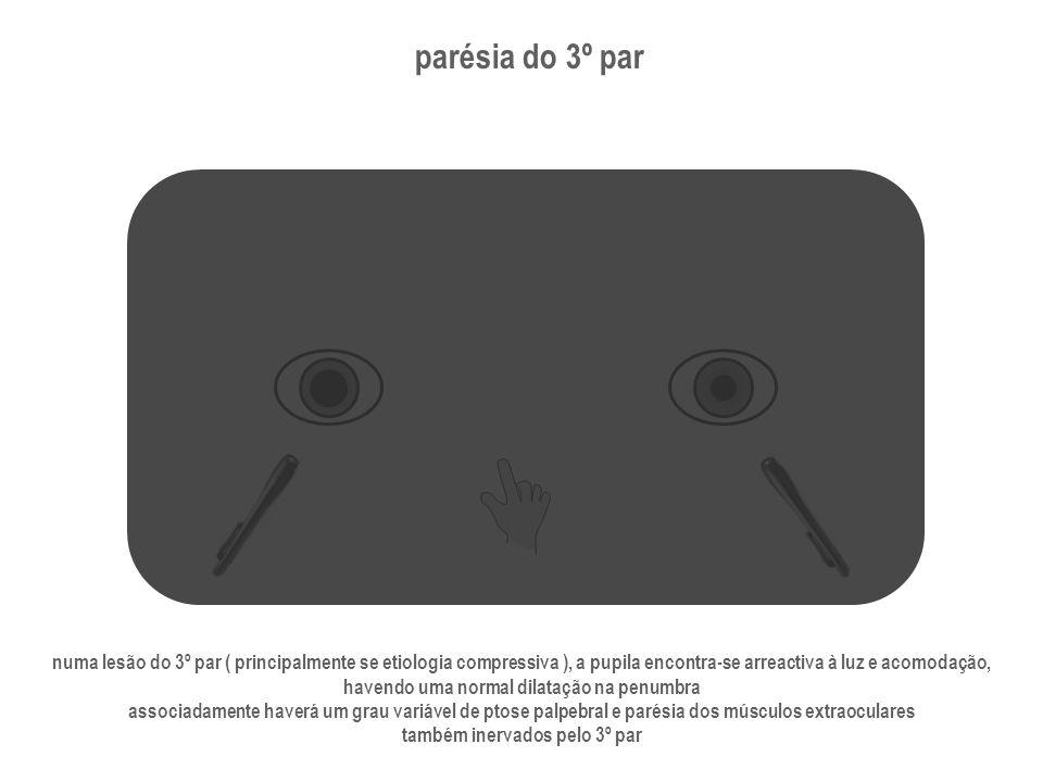 parésia do 3º par numa lesão do 3º par ( principalmente se etiologia compressiva ), a pupila encontra-se arreactiva à luz e acomodação, havendo uma no