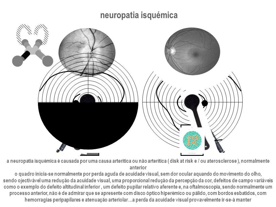 neuropatia isquémica a neuropatia isquémica é causada por uma causa arterítica ou não arterítica ( disk at risk e / ou aterosclerose ), normalmente an