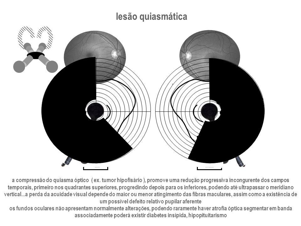 lesão quiasmática a compressão do quiasma óptico ( ex. tumor hipofisário ), promove uma redução progressiva incongurente dos campos temporais, primeir
