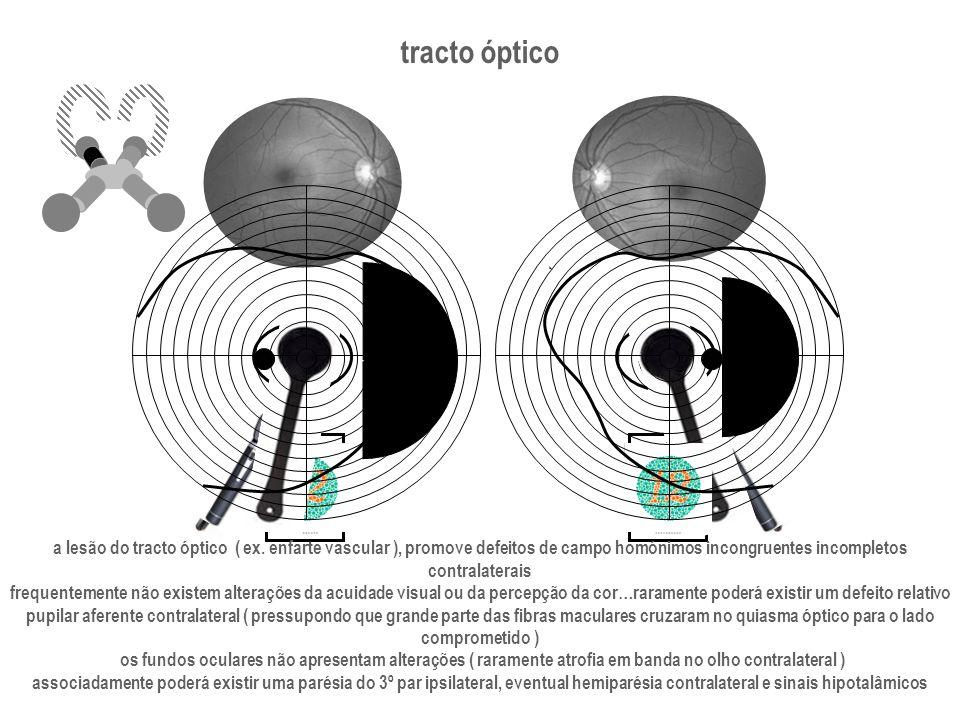 tracto óptico a lesão do tracto óptico ( ex. enfarte vascular ), promove defeitos de campo homónimos incongruentes incompletos contralaterais frequent