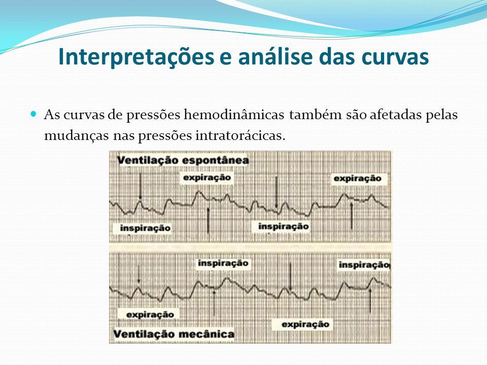 Interpretações e análise das curvas  As curvas de pressões hemodinâmicas também são afetadas pelas mudanças nas pressões intratorácicas.