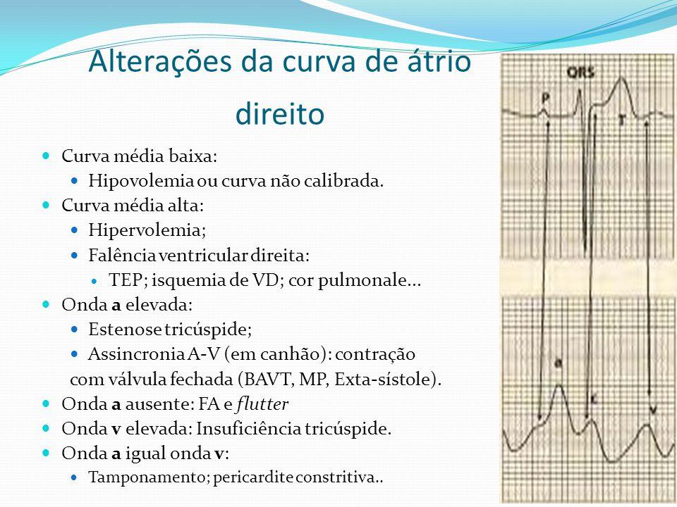  Curva média baixa:  Hipovolemia ou curva não calibrada.  Curva média alta:  Hipervolemia;  Falência ventricular direita:  TEP; isquemia de VD;